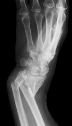 Afectiunile reumatismale abarticulare si tratarea lor in statiuni