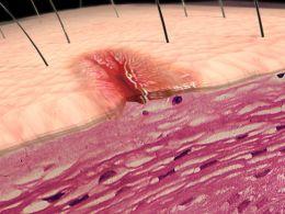 Cervical vertebrele privind tratamentul instabilita?ii coloanei vertebrale