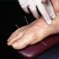 Cum functioneaza acupunctura
