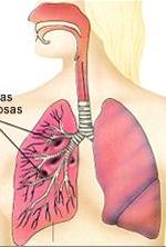 Referat - Tuberculoza